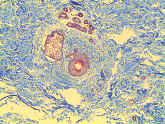 Trichrome Stain of Dermal Tissue Samples at 5X Magnification