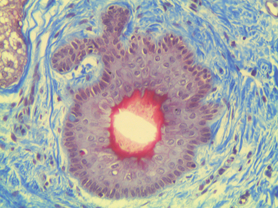 Trichrome Stain of Dermal Tissue Samples at 20X Magnification